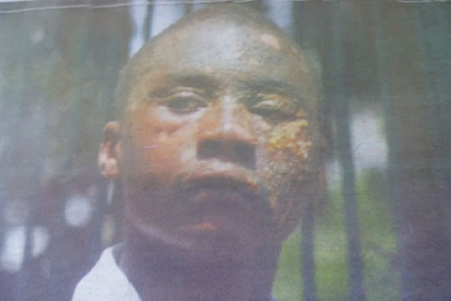 "POLYGAMY AS HOT AS HELL!...JEALOUS ""2ND WIFE"" POURS BOILING COOKING OIL ON SLEEPING HUBBY'S FACE!"